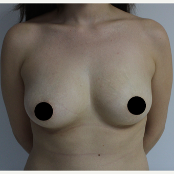 25-34 year old woman treated with Breast Augmentation before 3184656