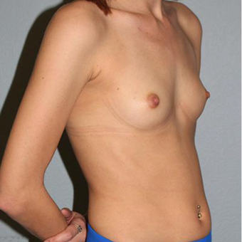18-24 year old woman treated with Breast Augmentation before 3332623