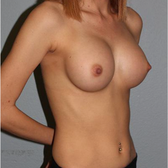 18-24 year old woman treated with Breast Augmentation after 3332623