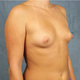Mentor Breast Implants before 3033467