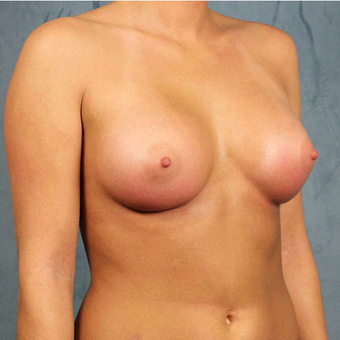 Mentor Breast Implants after 3033467