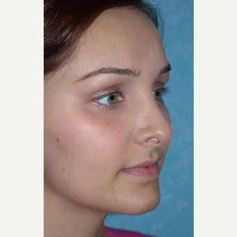 Rhinoplasty results on this 21 year old female after 3732601