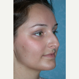Rhinoplasty results on this 21 year old female before 3732601