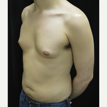 25-34 year old man treated with Liposuction before 3418672