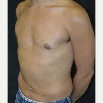 25-34 year old man treated with Liposuction after 3418672