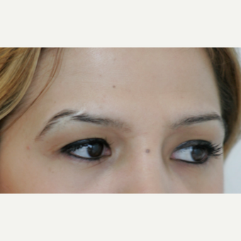 25-34 year old woman treated with Eyebrow Transplant before 3297452