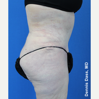 55-64 year old woman treated with Tummy Tuck after 3679922