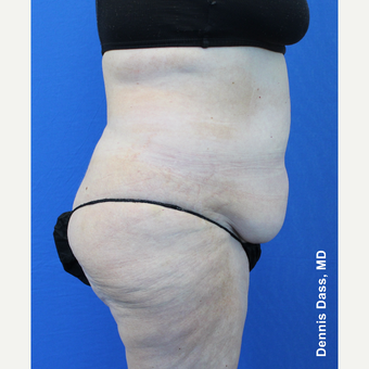 55-64 year old woman treated with Tummy Tuck before 3679922