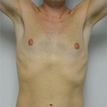 25-34 year old man treated with Male Breast Reduction before 3683752