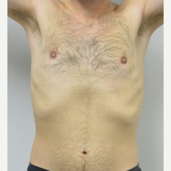 25-34 year old man treated with Male Breast Reduction after 3683752