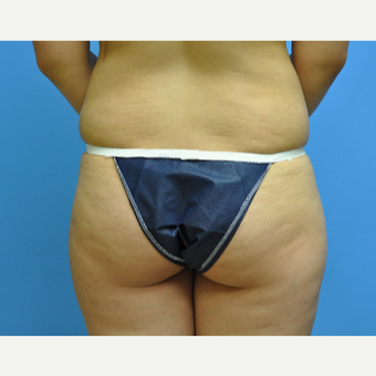 30 year old woman treated with Brazilian Butt Lift before 2956391