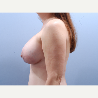 45-54 year old woman treated with Breast Implant Revision after 3610884