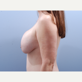 45-54 year old woman treated with Breast Implant Revision before 3610884