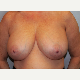 55-64 year old woman treated with Breast Reduction before 3803194