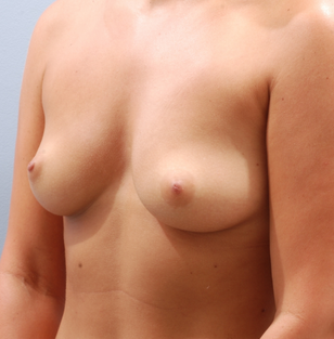 Transaxillary breast augmentation (BEWISE) before 235361