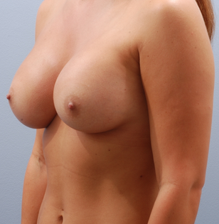 Transaxillary breast augmentation (BEWISE) after 235361