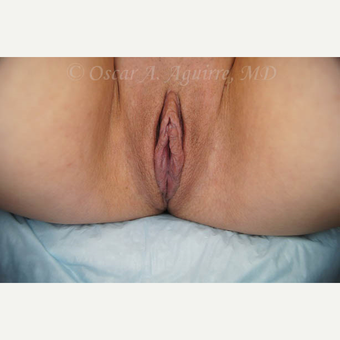 31 yo female had Labiaplasty of Labia Minora and Clitoral Hood Reduction with Clitoropexy after 3004229