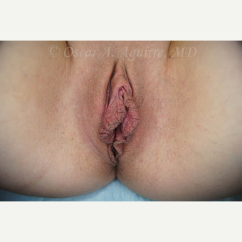 31 yo female had Labiaplasty of Labia Minora and Clitoral Hood Reduction with Clitoropexy before 3004229