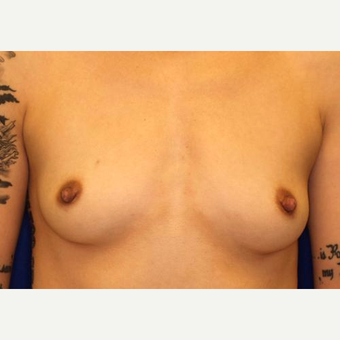 18-24 year old woman treated with Breast Augmentation before 3005815