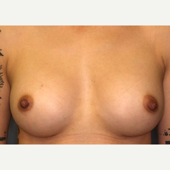 18-24 year old woman treated with Breast Augmentation after 3005815