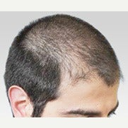 18-24 year old man treated with FUE Hair Transplant before 1556190