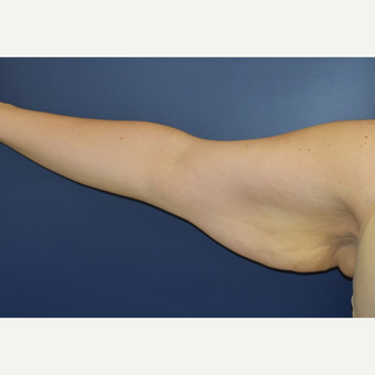 25-34 year old woman treated with Arm Lift