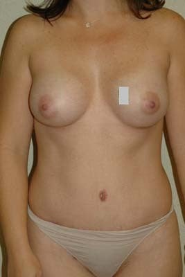 33 year old woman who underwent a mommy makeover: Breast augmentation and Tummy Tuck