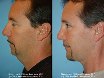 Neck Liposuction before 1389493