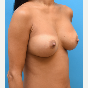 35-44 year old woman treated with Breast Augmentation after 3423665