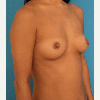 35-44 year old woman treated with Breast Augmentation before 3423665