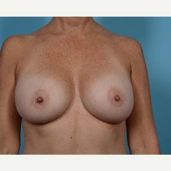45-54 year old woman treated with Breast Augmentation after 3782952