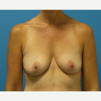 45-54 year old woman treated with Breast Augmentation before 3782952