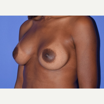 Breast Augmentation with Ideal Saline Breast Implants 350 cc after 3080174