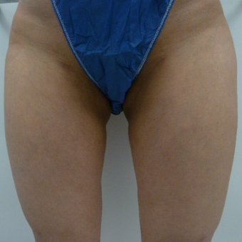 25-34 year old woman treated with Liposuction defects and scarring due to SmartLipo on inner thighs before 2823896
