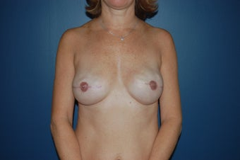 Breast reconstruction  after 1060937