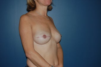 Breast reconstruction  1060937