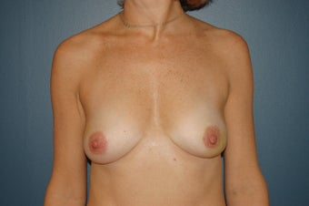 Breast reconstruction  before 1060937