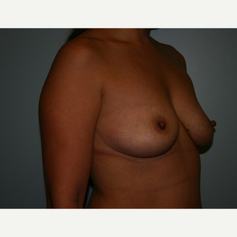Breast Augmentation before 3561994