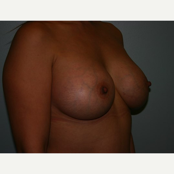 Breast Augmentation after 3561994