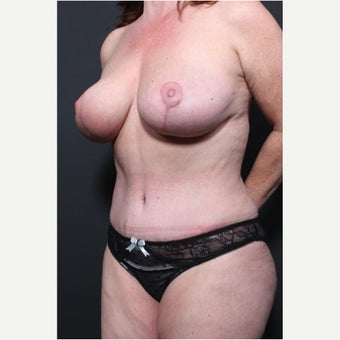 35-44 year old woman treated with Mommy Makeover after 1720881