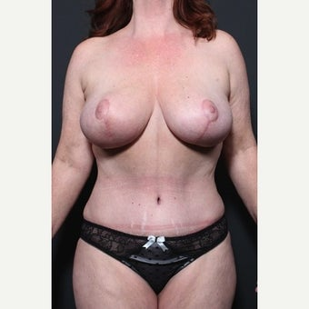 35-44 year old woman treated with Mommy Makeover 1720881