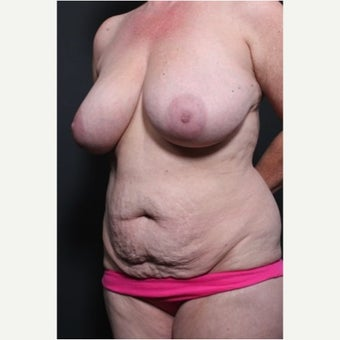35-44 year old woman treated with Mommy Makeover before 1720881