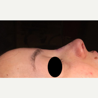 25-34 year old woman treated with Rhinoplasty after 3211283