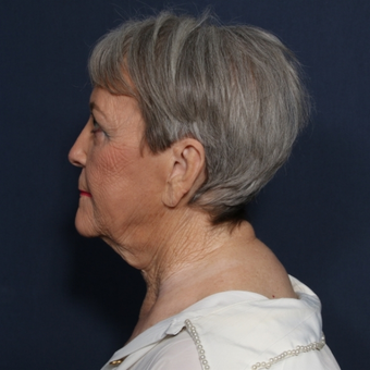 65-74 year old woman treated with Neck Lift (view 2 of 2) before 3180014