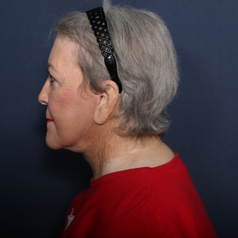 65-74 year old woman treated with Neck Lift (view 2 of 2) after 3180014