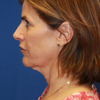 56 year old woman treated with Neck Lift, facelift, fat transfer, CO2 laser and Upper eyelids before 3135223