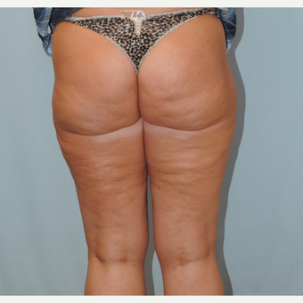 45-54 year old woman treated with Smart Lipo after 3616407