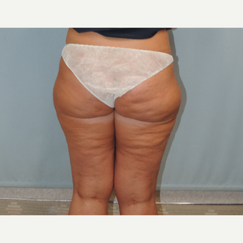 45-54 year old woman treated with Smart Lipo before 3616407