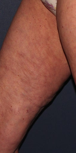 70 yo Female ThermiTight for Thigh Skin Laxity after 1459270