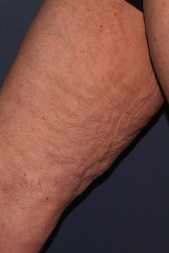70 yo Female ThermiTight for Thigh Skin Laxity before 1459270